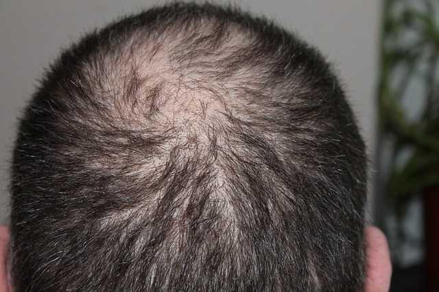 EXCESSIVE HAIR SHEDDING ( HAIR FALL) PART 1