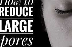 how to reduce large pores on face, nose or cheeks
