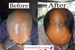 Jonk oil reviews: Can Jonk oil really cure baldness? | Lynnai Style