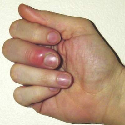 Mahmood Blogs Paronychia Symptoms - Paronychia Treatment