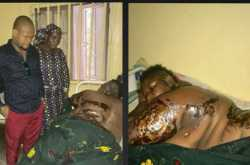 plus size woman attacked with acid by her ex-lover (graphic photos)