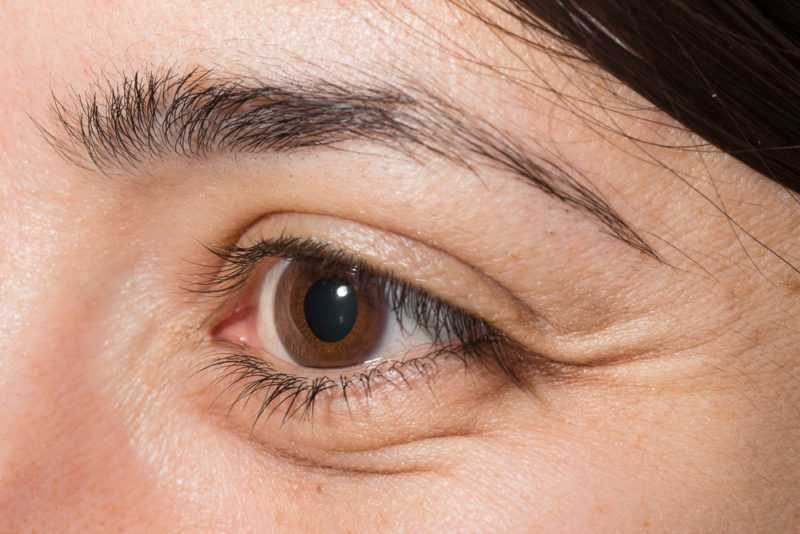 Tips To Banish Those Puffy Eyes - Women Fitness