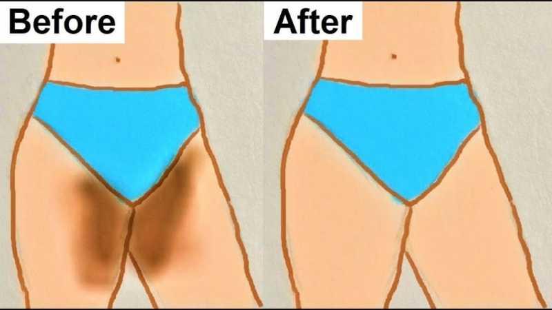 Ways To Lighten Dark Inner Thighs - All About Women