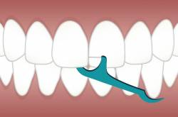 Keeping Up With Your Oral Health In Between Dentist Visits - Find Health Tips